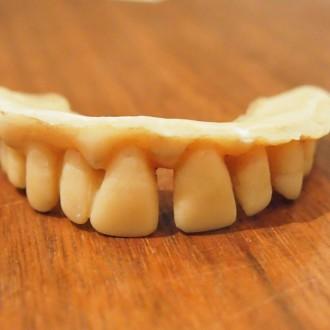 隙間の空いたシュワルツェネッガー氏の歯型